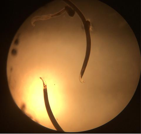 Understanding Anthelminth Resistance in Hookworms | Center